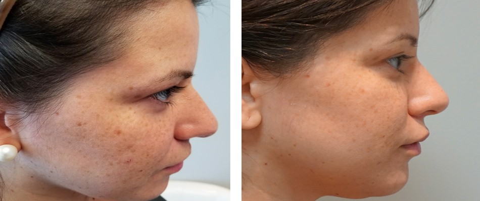 Co2 Face Resurfacing Stephen Channey MD